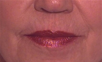 Dermal Fillers After Photo by Richard Sadove, MD; Gainesville, FL - Case 21977