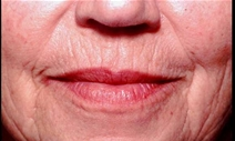 Dermal Fillers Before Photo by Richard Sadove, MD; Gainesville, FL - Case 21977