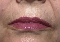 Dermal Fillers After Photo by Richard Sadove, MD; Gainesville, FL - Case 21979