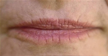 Dermal Fillers Before Photo by Richard Sadove, MD; Gainesville, FL - Case 21979