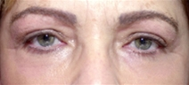 Eyelid Surgery After Photo by Richard Sadove, MD; Gainesville, FL - Case 22056