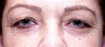 Eyelid Surgery Before Photo by Richard Sadove, MD; Gainesville, FL - Case 22056