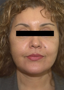 Facelift After Photo by Richard Sadove, MD; Gainesville, FL - Case 22520