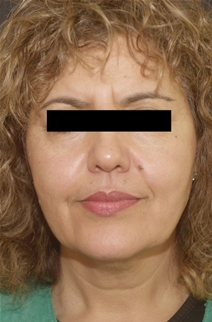 Facelift Before Photo by Richard Sadove, MD; Gainesville, FL - Case 22520