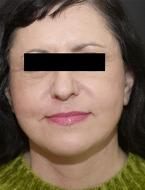Facelift After Photo by Richard Sadove, MD; Gainesville, FL - Case 22521