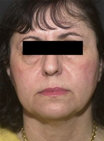 Facelift Before Photo by Richard Sadove, MD; Gainesville, FL - Case 22521