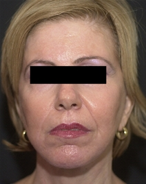 Facelift After Photo by Richard Sadove, MD; Gainesville, FL - Case 22530