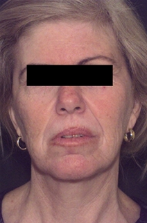 Facelift Before Photo by Richard Sadove, MD; Gainesville, FL - Case 22530
