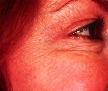 Botulinum Toxin After Photo by Richard Sadove, MD; Gainesville, FL - Case 23425