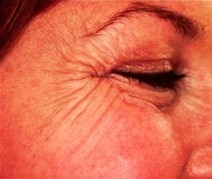Botulinum Toxin Before Photo by Richard Sadove, MD; Gainesville, FL - Case 23425