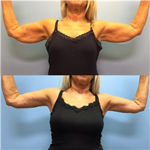 Arm Lift Before Photo by Jason Petrungaro, MD, FACS; Munster, IN - Case 31327
