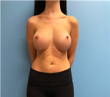 Breast Augmentation After Photo by Jason Petrungaro, MD, FACS; Munster, IN - Case 31329