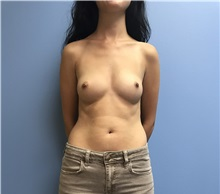 Breast Augmentation Before Photo by Jason Petrungaro, MD, FACS; Munster, IN - Case 31329