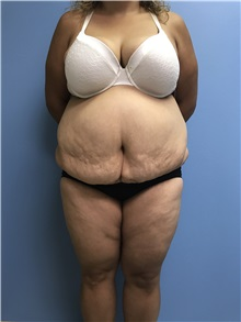Body Lift Before Photo by Jason Petrungaro, MD, FACS; Munster, IN - Case 31340