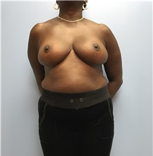 Breast Reduction After Photo by Jason Petrungaro, MD, FACS; Munster, IN - Case 31341