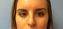 Rhinoplasty After Photo by Jason Petrungaro, MD, FACS; Munster, IN - Case 31342