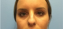 Rhinoplasty Before Photo by Jason Petrungaro, MD, FACS; Munster, IN - Case 31342