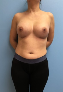 Breast Augmentation After Photo by Jason Petrungaro, MD, FACS; Munster, IN - Case 31356
