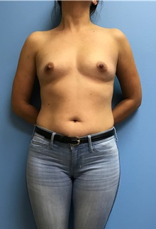Breast Augmentation Before Photo by Jason Petrungaro, MD, FACS; Munster, IN - Case 31356