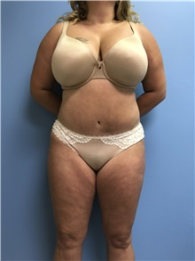 Tummy Tuck After Photo by Jason Petrungaro, MD, FACS; Munster, IN - Case 31358