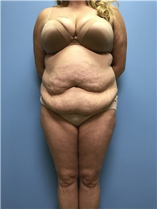 Tummy Tuck Before Photo by Jason Petrungaro, MD, FACS; Munster, IN - Case 31358