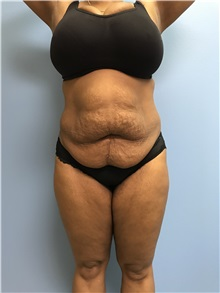 Tummy Tuck Before Photo by Jason Petrungaro, MD, FACS; Munster, IN - Case 31361