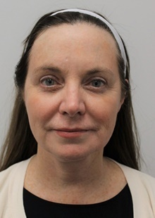 Facelift After Photo by Sara Dickie, MD; Skokie, IL - Case 43156