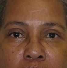 Eyelid Surgery After Photo by Mark McRae, MD, FRCS(C); Hamilton, ON - Case 38914