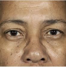 Eyelid Surgery Before Photo by Mark McRae, MD, FRCS(C); Hamilton, ON - Case 38914