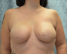 Breast Reconstruction After Photo by Mark McRae, MD, FRCS(C); Hamilton, ON - Case 39213