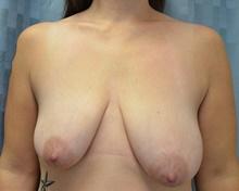 Breast Reconstruction Before Photo by Mark McRae, MD, FRCS(C); Hamilton, ON - Case 39213