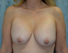 Breast Implant Removal Before Photo by Mark McRae, MD, FRCS(C); Hamilton, ON - Case 39218