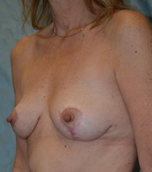 Breast Implant Removal After Photo by Mark McRae, MD, FRCS(C); Hamilton, ON - Case 39218