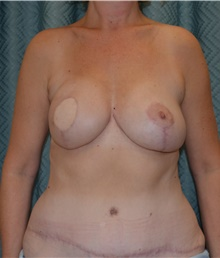 Breast Reconstruction After Photo by Mark McRae, MD, FRCS(C); Hamilton, ON - Case 39219