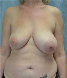 Breast Reconstruction Before Photo by Mark McRae, MD, FRCS(C); Hamilton, ON - Case 39219