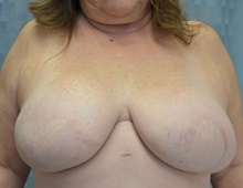 Breast Reconstruction After Photo by Mark McRae, MD, FRCS(C); Hamilton, ON - Case 39234