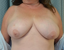 Breast Reconstruction Before Photo by Mark McRae, MD, FRCS(C); Hamilton, ON - Case 39234