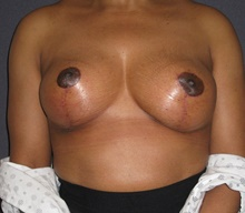 Breast Lift After Photo by Mark McRae, MD, FRCS(C); Hamilton, ON - Case 41687