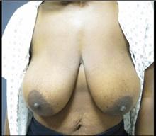 Breast Lift Before Photo by Mark McRae, MD, FRCS(C); Hamilton, ON - Case 41687