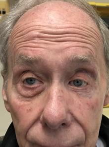 Eyelid Surgery Before Photo by Mark McRae, MD, FRCS(C); Hamilton, ON - Case 42013