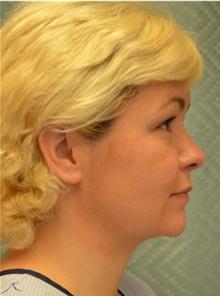 Chin Augmentation After Photo by Mark McRae, MD, FRCS(C); Hamilton, ON - Case 42014