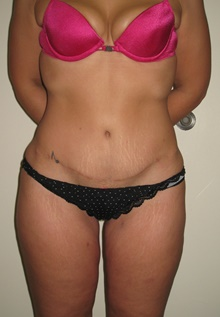 Liposuction After Photo by Mark McRae, MD, FRCS(C); Hamilton, ON - Case 42022