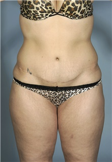 Liposuction Before Photo by Mark McRae, MD, FRCS(C); Hamilton, ON - Case 42022