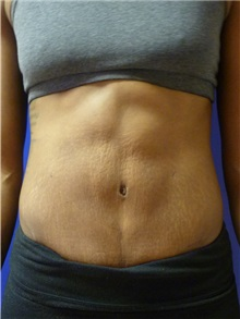 Liposuction After Photo by Mark Markarian, MD, MSPH; Wellesley, MA - Case 31768