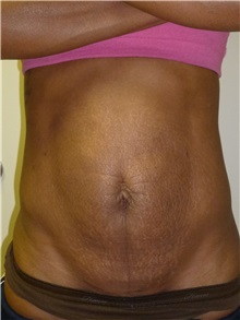 Liposuction Before Photo by Mark Markarian, MD, MSPH; Wellesley, MA - Case 31768
