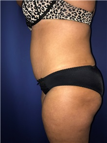 Tummy Tuck After Photo by Mark Markarian, MD, MSPH, FACS; Wellesley, MA - Case 31808
