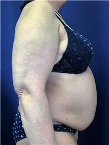 Tummy Tuck Before Photo by Mark Markarian, MD, MSPH, FACS; Wellesley, MA - Case 31808