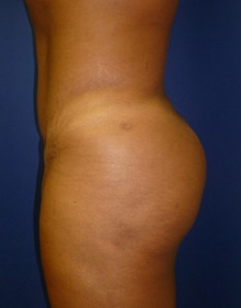 Buttock Lift with Augmentation After Photo by Mark Markarian, MD, MSPH, FACS; Wellesley, MA - Case 31809