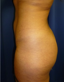 Buttock Lift with Augmentation Before Photo by Mark Markarian, MD, MSPH; Wellesley, MA - Case 31809