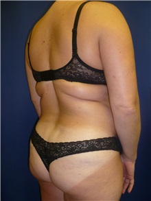 Buttock Lift with Augmentation Before Photo by Mark Markarian, MD, MSPH; Wellesley, MA - Case 31810
